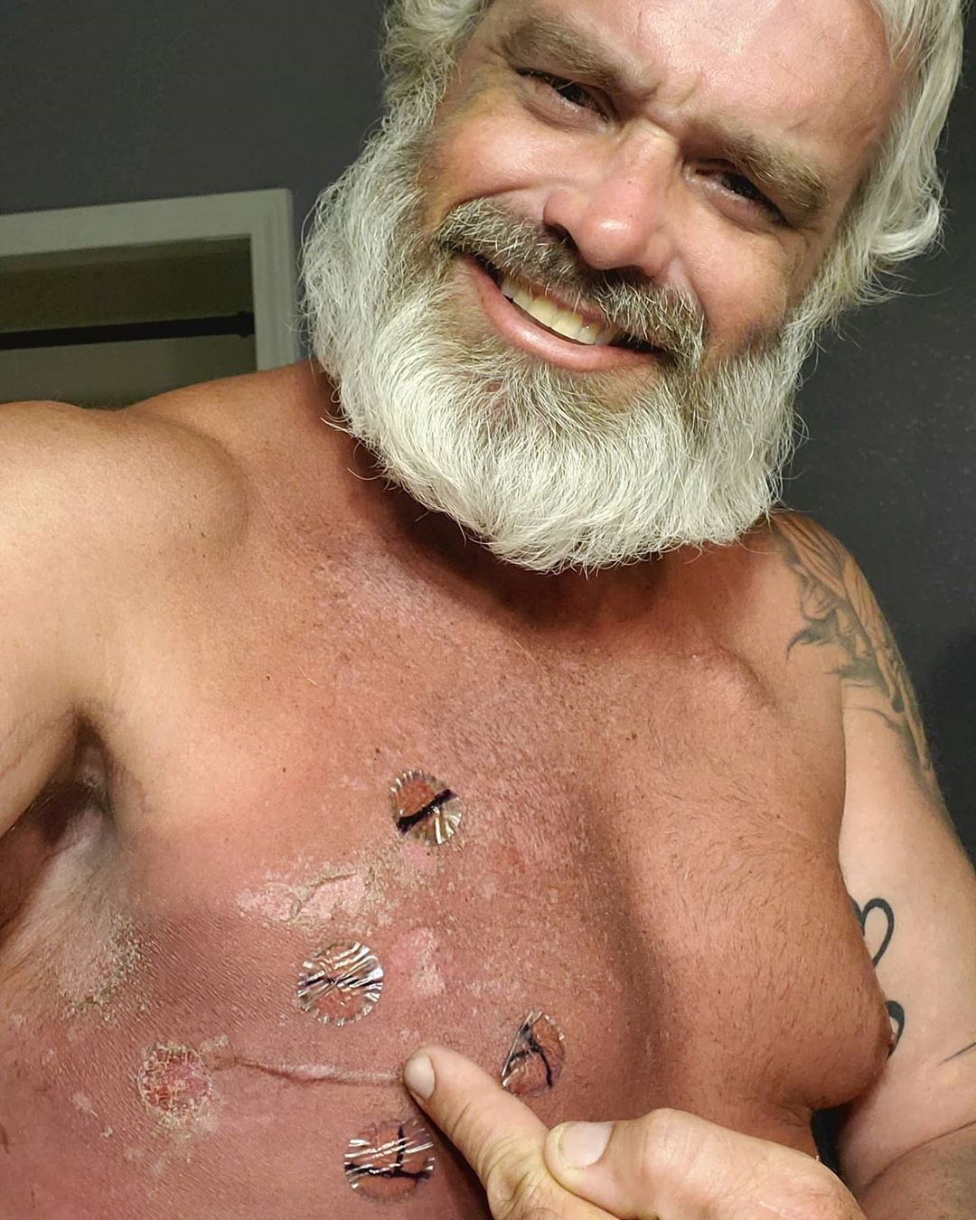 Our Warrior Wednesday spotlight, Zac Yarbrough, shows off his scars on his chest.
